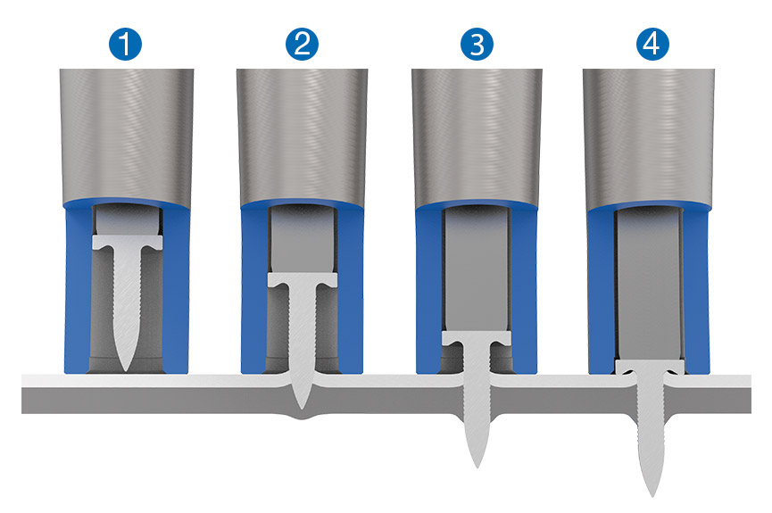 Ordre de pose de RIVTAC<sup>®</sup> – 1) Positionnement 2) Pénétration 3) Perforation 4) Compression
